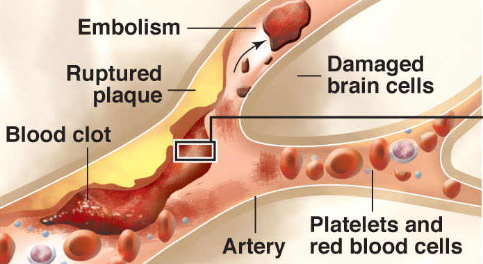 Diagram shows how the stroke treatment medication tPA breaks up a blood clot to restore blood flow and normal neurological function to the brain. Los Angeles Times/MCT 2013  With SCI-STROKE, Los Angeles Times by Melissa Healy  07000000; 13000000; HTH; krthealth health; krtnational national; krtscience science; krtscitech; MED; SCI; TEC; krt; mctgraphic; 07001000; 07003001; 07003005; 07005000; 07007003; 07017000; 07018000; 13006000; disease; HEA; health treatment; illness; krtmedicine medicine; krtmedicine medicine medical; medical condition; medical research; prescription drug; therapy; western; 13019000; biotechnology; krttechnology technology; drawing; la contributed; 2013; krt2013; mcdonald; elebee; healy; stroke; tpa; blood; clot; embolism; plaque; platelet; brain; cell; artery; oxygen; plasminogen; protein